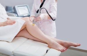 laser hair removal in Canterbury